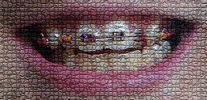 mosaicteeth